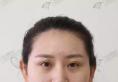 沈阳杏林张宇夫面部自体脂肪填充案例 让她从30岁变回18岁少女