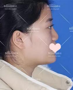 在上海喜美做完鼻综合+自体脂肪填充+面部提升 气质变化好惊人