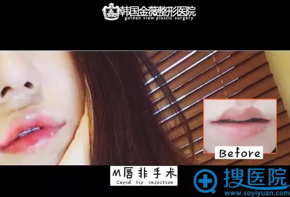 韩国金薇整形医院M唇非手术案例前后对比图