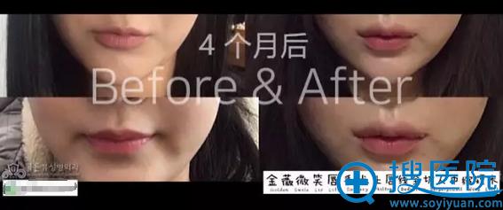 韩国金薇整形医院微笑唇手术上唇线全切人中缩短术