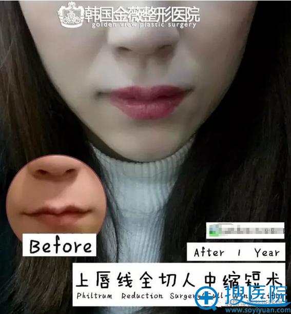 韩国金薇微笑唇手术上唇线全切人中缩短术前后对比图片