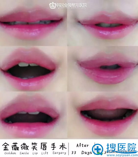 韩国金薇整形医院微笑唇手术33后案例图片