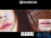 微笑唇上唇全切人中缩短术案例图片揭秘韩国金薇整形医院怎么样