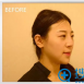 兰州嘉琳医疗田海峰隆鼻失败修复+鼻综合案例 让我收获完美侧颜