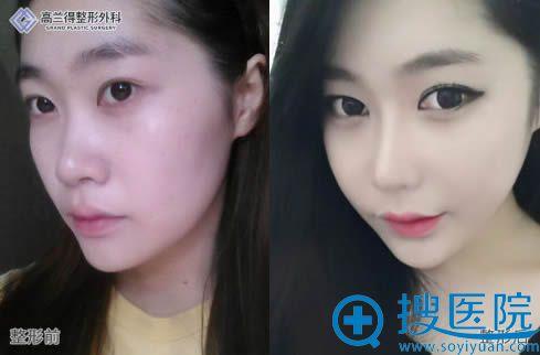 韩国高兰得鼻综合整形和自体脂肪填充术后一个月效果
