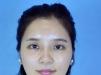 隆鼻失败怎么办 南宁华美胡凯专家鼻修复案例让她7天拥有小翘鼻