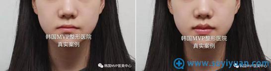 韩国MVP整形医院丰唇术+唇形矫正对比照片