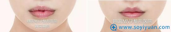 韩国MVP整形医院唇形矫正+唇珠塑形对比照