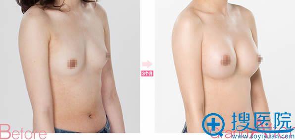 韩国高兰得整形医院自体脂肪隆胸前后对比效果