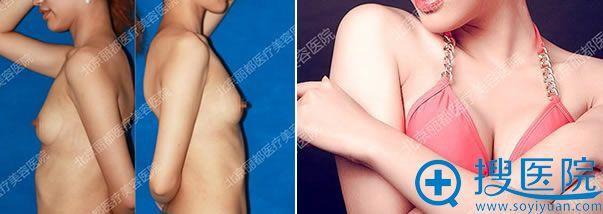 北京丽都石冰的假体隆胸案例