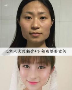 分享我在八大处花6万找刘剑锋做颧骨颧弓+下颌角手术经历