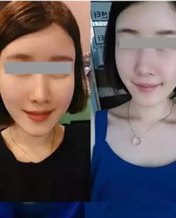 变美秘籍:广州华美自体脂肪面部填充3个月后从大妈变为女神