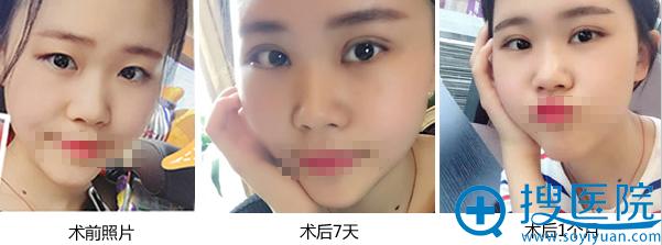 洛阳华美宋俊岭双眼皮案例