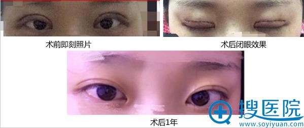 洛阳王静廖伟峰双眼皮案例