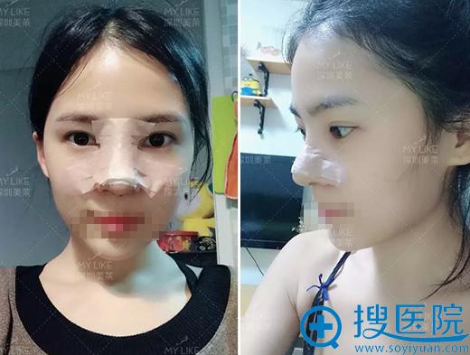 深圳美莱梁晓健鼻修复术后恢复期照片