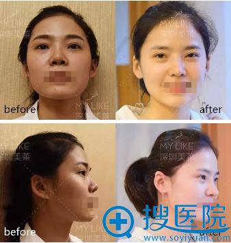 深圳美莱梁晓健鼻修复手术前后对比图