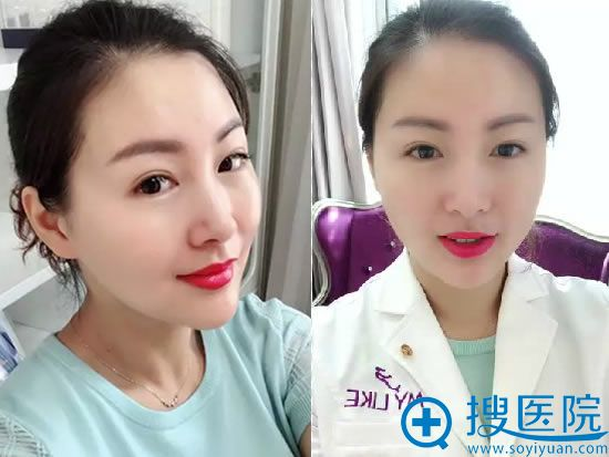 天津美莱员工注射玻尿酸术后一周效果