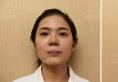 深圳美莱梁晓健鼻修复整形案例前后对比图及七夕整形价格分享