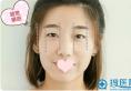 天津伊美尔谁做双眼皮好 于广洋主任做的双眼皮案例对比图分享