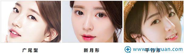 双眼皮的类型有哪些?