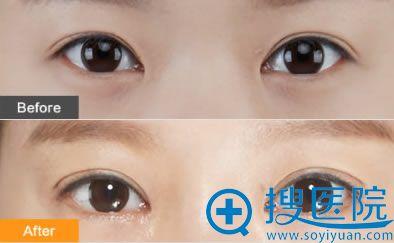 微创三点定位双眼皮效果