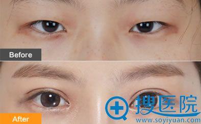 隐形切开法双眼皮手术效果