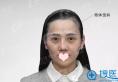 上海时光医院许黎平隆鼻失败修复案例 一起来看术后效果怎么样