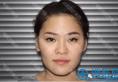 上海盈美杨璐医生怎么样?帮助隆鼻失败修复两次的她重获新生