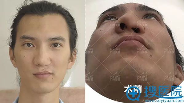 在广州美莱整形医院做鼻整形修复术前照