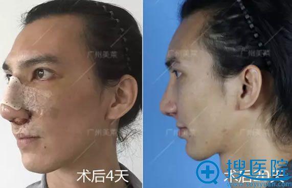 广州美莱达拉斯美鼻修复术后恢复效果