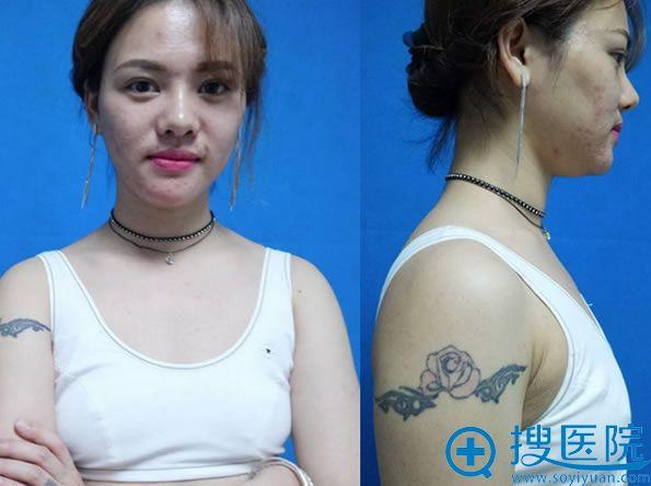 在广州晨曦美容医院做胸部整形术前照