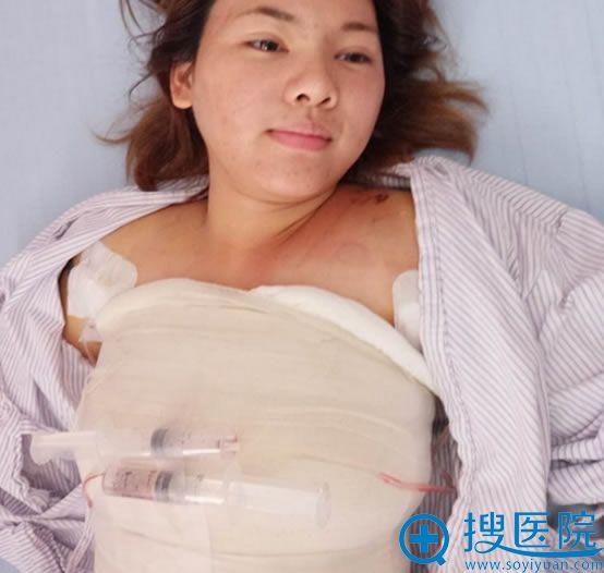 广州晨曦假体隆胸术后3天照片