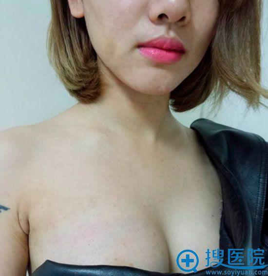 广州晨曦陈柯主任假体隆胸术后半个月恢复效果