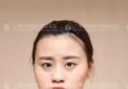 上海华美鼻综合做的怎么样 李健隆鼻+假体垫下巴案例见证实力