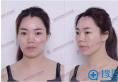 上海长征医院刘安堂做鼻子好吗 隆鼻后让她轻松变身混血美女