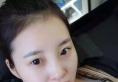 上海宏康医院李长江割双眼皮技术怎么样 效果真的又美又自然