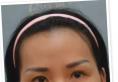 看我在南宁东方医疗美容医院做的鼻综合+丰太阳穴效果怎么样