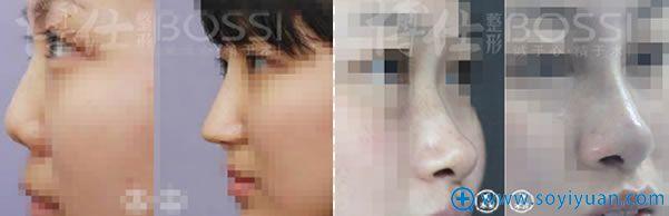 李帅敏假体隆鼻前后对比案例
