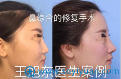 王旭东经典案例-鼻综合修复