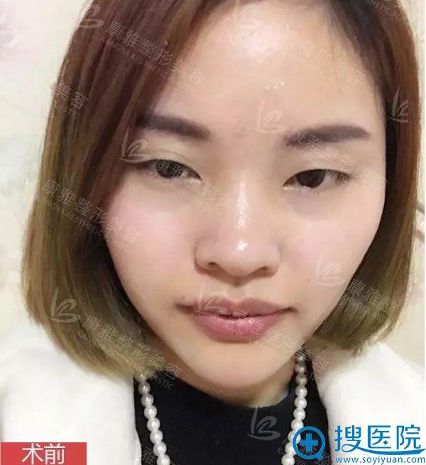 在重庆康雅整形医院做双眼皮术前照
