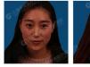 上海哪里打瘦脸针好 看我在上海华美找聂捷打瘦脸针效果怎么样