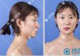 上海华美叶丽萍隆鼻案例 看我驼峰鼻矫正术后3个月效果怎么样