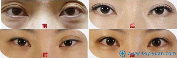 韩国清潭成镇模双眼皮修复案例