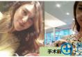 双鄂手术哪里做得好?分享我在韩国原辰做双鄂+下颌角亲身经历