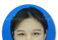 南宁梦想整形隆鼻好吗?分享我做完隆鼻变身韩系美女全过程
