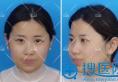 苏州美莱揭秘:鼻子基础好的人和鼻子基础不好的人的隆鼻区别