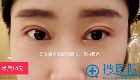 西安西美双眼皮+内开眼角术后恢复
