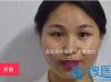 围观西安西美双眼皮手术的全过程直播   真人案例视频不要错过