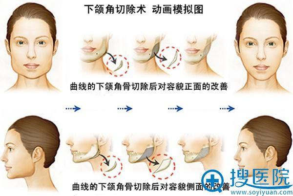 北京八大处下颌角整形手术