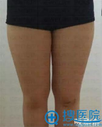 在韩国珠儿丽整形外科做腿部吸脂术前照